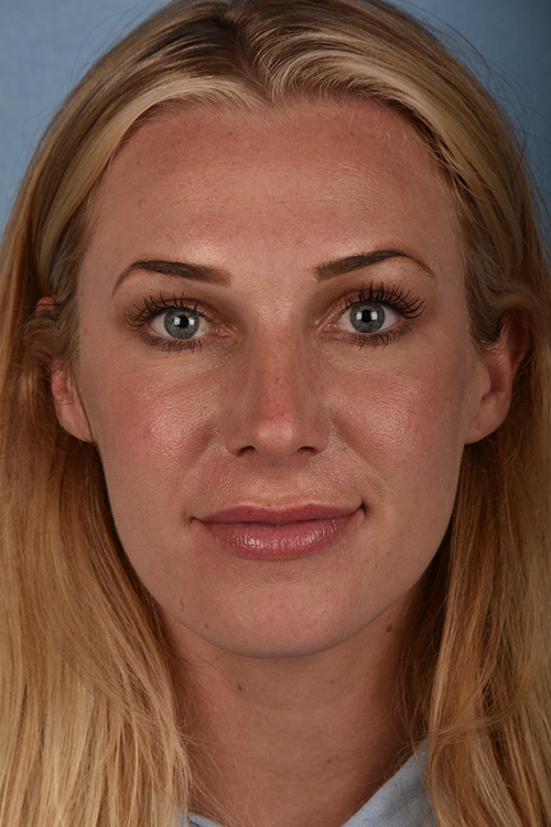 After Rhinoplasty San Jose