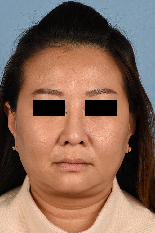 After Rhinoplasty Palo Alto